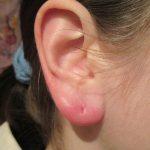 Почему могут болеть уши от серёжек и что делать
