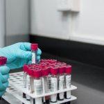 Медицинские лаборатории анализов в Красноярске как выбрать лучшую
