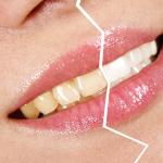 Почему темнеют зубы